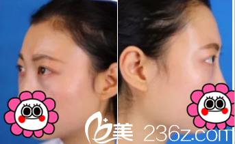 北京解放军309医院张亚洁祛眼袋案例术后3天效果