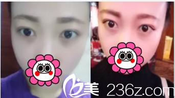 北京解放军309医院整形美容烧伤修复中心张亚洁祛眼袋术后28天效果