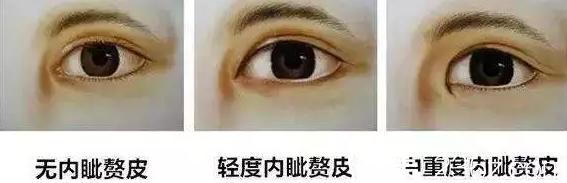 内眦赘皮需要做开眼角手术