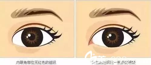 开内眼角可以改善眼睛的形态