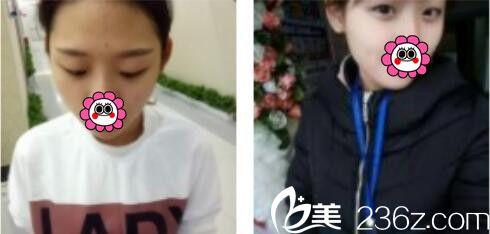 上海薇琳医疗美容医院李超术前照片1