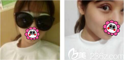 上海薇琳医疗美容医院李超双眼皮真人案例术后第三天