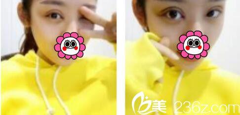 上海薇琳医疗美容医院李超双眼皮真人案例术后第七天