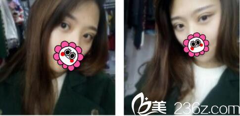 上海薇琳医疗美容医院李超双眼皮真人案例术后一个月