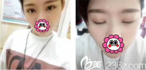 上海薇琳医疗美容医院李超双眼皮真人案例术后两个月