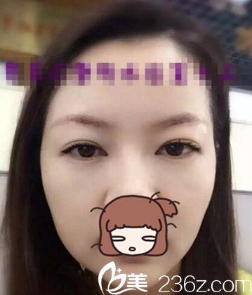 在郑州明眸整形做无痕提眉前后10天效果变化照片 你看我年轻了几岁