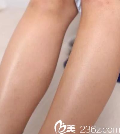 夏季脱毛就像脱单一样 能趁早在邯郸第一医院整形科做激光拥有光滑肌肤就别拖着