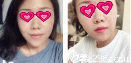 面部线雕多久能恢复?上海薇琳丁晓东为我做的面部线雕不到一个月就恢复自然了