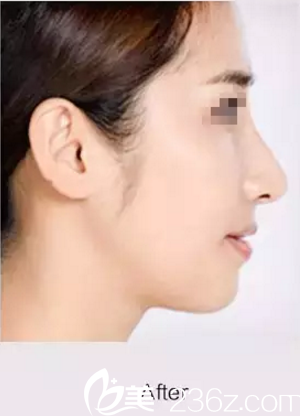 想改善驼峰鼻?在松原铭医做达拉斯综合隆鼻后拥有娇翘美鼻