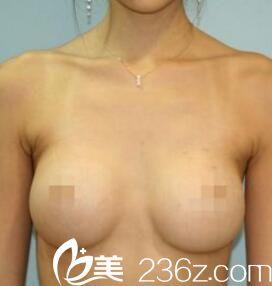 长春海茵刘涛做自体脂肪丰胸效果自然吗?看我2个月术后恢复