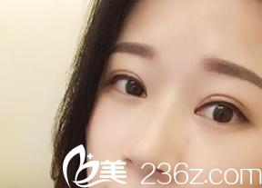 我在大同伊美康整形医院做了双眼皮,恢复一个月后没想到肿泡眼也不见了