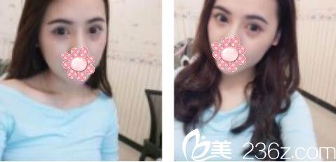 一美做双眼皮怎么样?瞧瞧我在上海一美找邹丽剑做的全切双眼皮两个月了恢复的还挺自然的