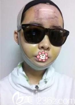 姬广翰双鄂+面部轮廓术后10天
