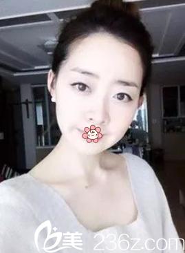 我自己在网上预约重庆美仑美奂整形姬广翰做的双鄂+面部轮廓手术挺成功!