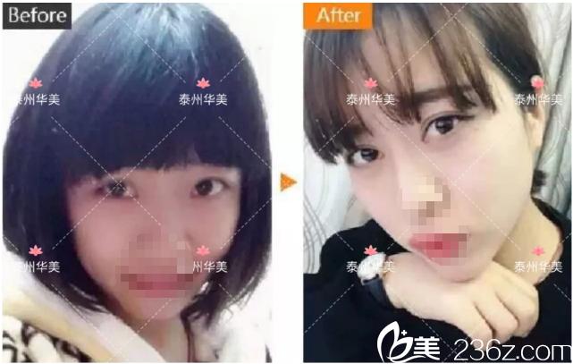 赵新房医生芭比眼综合整形案例