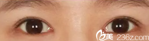 梅河口做双眼皮哪好?分享一下我在梅河口市百颜做双眼皮手术的恢复效果