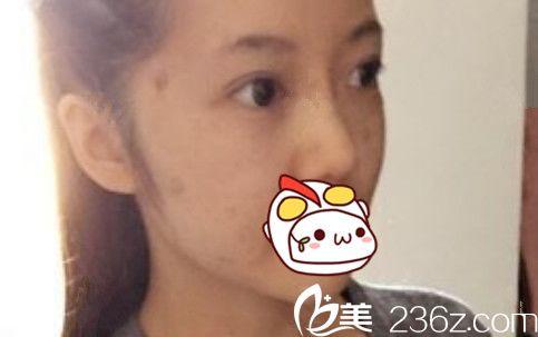 芜湖一秒国际埋线提升+肉毒素瘦脸术后即刻照片