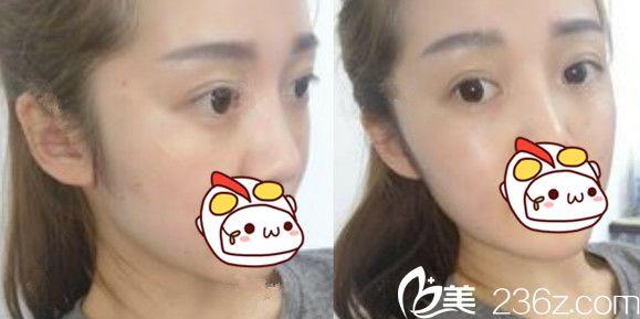 注射肉毒素瘦脸针+面部埋线提升术后第3天恢复情况