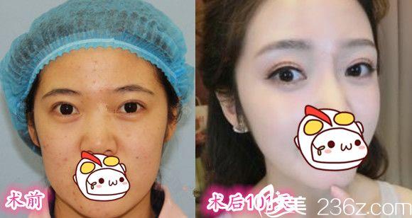 芜湖一秒国际田军肉毒素瘦脸+面部埋线提升前后效果对比图