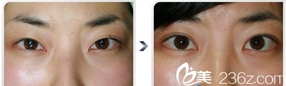 广州中家医家庭医生整形美容医院福田庆三做的双眼皮眼睛案例图