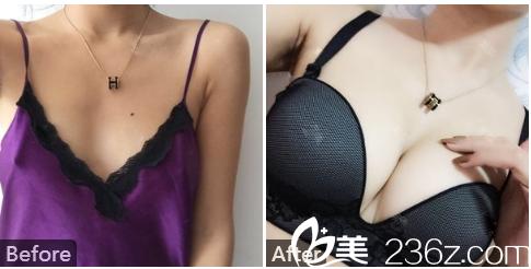 广州中家医家庭医生整形美容医院黄广香假体隆胸案例