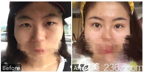 广州中山医科大学家庭医生整形美容医院于国中双眼皮案例图