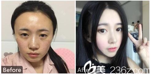 广州中家医家庭医生整形美容医院巫国辉隆鼻子案例图片