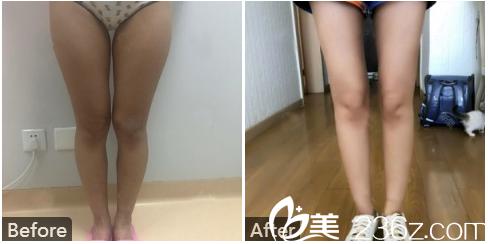 广州中家医家庭医生整形美容医院朱云大腿吸脂案例图