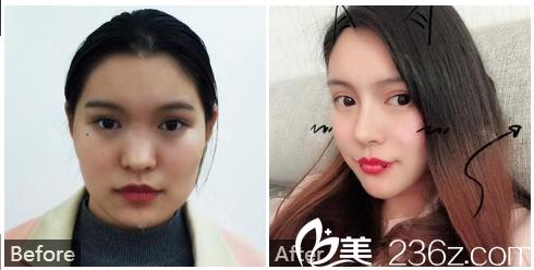 广州中山医科大学家庭医生整形美容医院刘冰隆鼻和脂肪填充案例