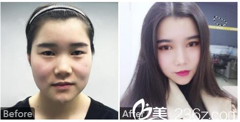 广州中家医家庭医生整形美容医院刘冰双眼皮案例