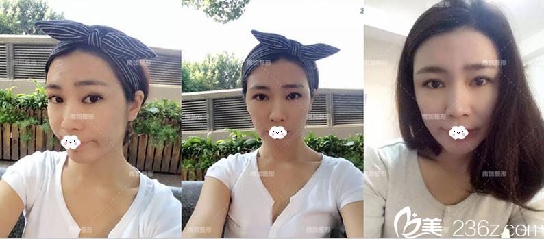 赵女士诉说在北京南加国际整形医院做切开双眼皮+开眼角塑美经历