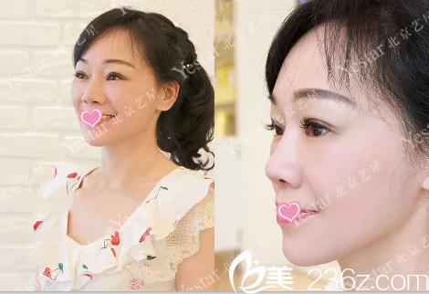 想知道北京艺星自体脂肪面部填充效果你来看一辣妈真实案例