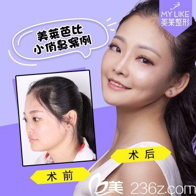 深圳美莱医疗整形美容医院鼻综合隆鼻案例