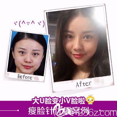 深圳美莱医疗整形美容医院瘦脸针案例