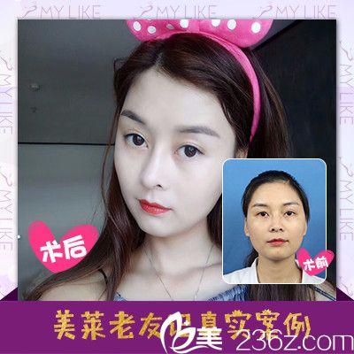 深圳美莱医疗整形美容医院线雕隆鼻案例