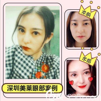 深圳美莱医疗整形美容医院切开双眼皮案例