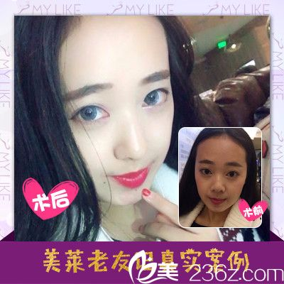 深圳美莱徐英做的全脸自体脂肪填充案例