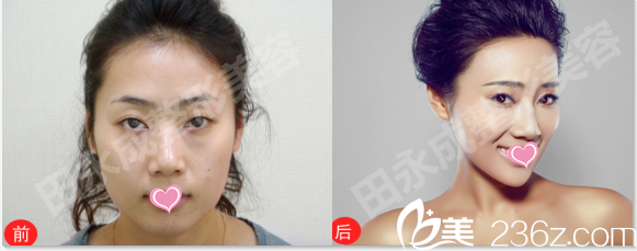 北京田永成医疗美容诊所面部光纤溶脂案例