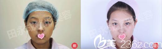 北京田永成医疗美容诊所祛眼袋效果