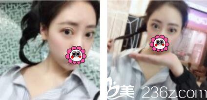 诉说我在上海东方丽人乔海初做双眼皮三个月恢复的心里路程