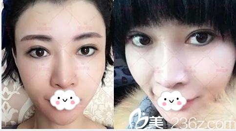 说说我在北京瑞妍茗医找鲁树荣做面部自体脂肪填充经历分享术后第95天效果