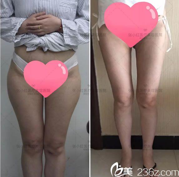 做运动减肥失败,义乌张小红侍医生选择腿部抽脂减肥手术25天后效果纪实