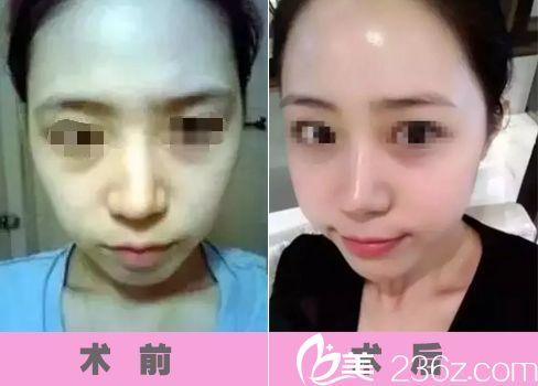 额头扁平?法令纹深?太阳穴窄?所有的面部凹陷问题在南京韩辰做了玻尿酸填充以后惊奇的没有了