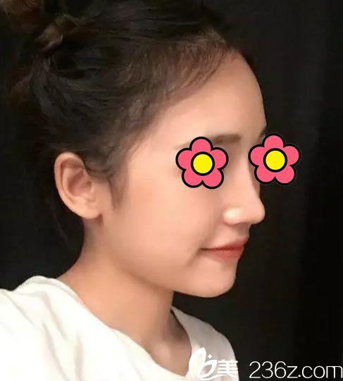 塌鼻梁大鼻头太伤自尊了,我到台州爱莱美做鼻综合隆鼻手术4个月恢复过程