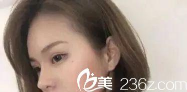 闺蜜推荐我在萍乡丽芙找张志宏做的全切双眼皮,美不美?