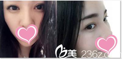 你瞧我在北京好年华医院找于建华做的切开双眼皮+开眼角2月效果好么