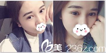 来看我23岁在北京知音整形医院找赵禹翔做全切双眼皮+开眼角给术后第48天效果