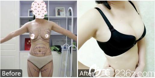 广州韩妃医疗整形美容医院曾繁茂自体脂肪隆胸案例
