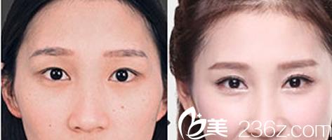 太原星范整形医院双眼皮效果对比图