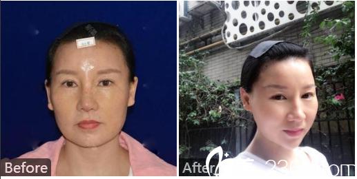 广州韩妃整形医院陈坦面部年轻化案例